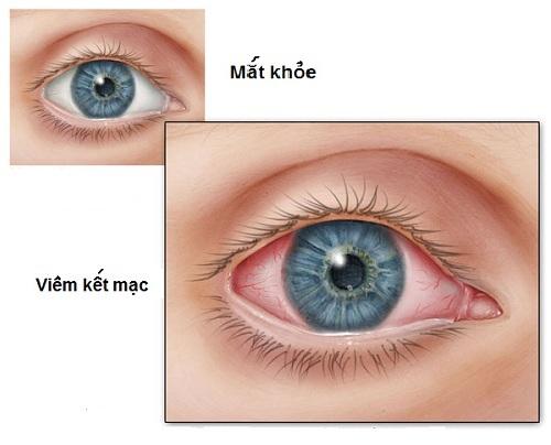 Biến chứng về mắt của bệnh đái tháo đường