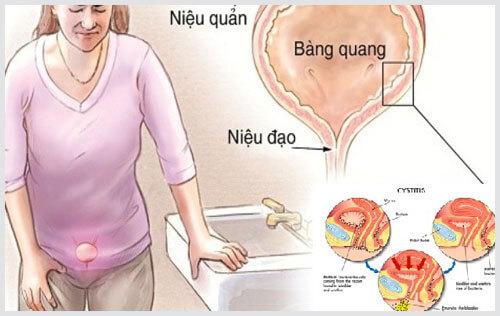 dấu hiệu bệnh tiểu đường ở phụ nữ
