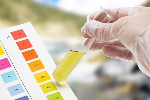 Phương pháp xét nghiệm đường huyết